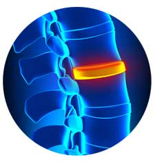 Regenerative Spine Treatments
