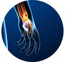 Wrist and Hand Conditions and Treatments