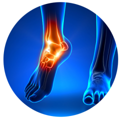 Ankle and Foot Conditions and Stem Cell Treatments